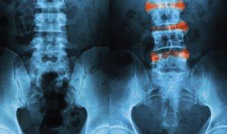 Bolest zad by mohla být nemoc z povolání už příští rok, kancelářské krysy ale mají smůlu