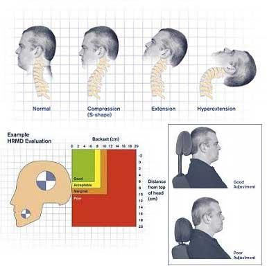 Thatcham: Hodnocení bezpečnosti opěrek hlav